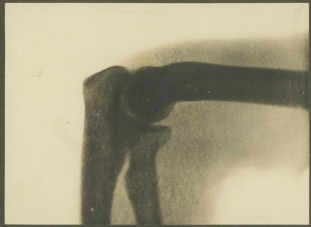 x-ray, elbow 1900, Melbourne