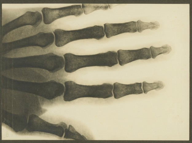 x-ray hand about 1900